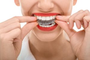Invisalign clear aligners in Richmond correct many orthodontic issues discreetly and comfortably. Read more from Dr. William Way at Westhampton Dentistry.