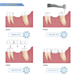 You want a great way to address your missing teeth – with dental bridges in 23226, you can make your smile healthy and happy again