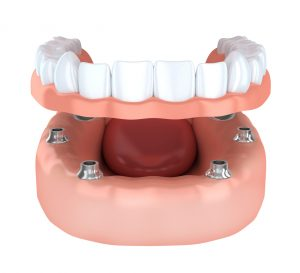 Dental implants in 23226 bond to the jaw