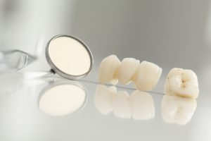 CEREC dental crowns in the 23226 area restore teeth in about an hour.
