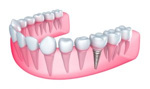 For dental implants in 23226, visit Dr. Way at Westhampton Dentistry.