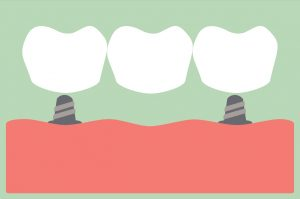 dental cartoon vector, dental bridge