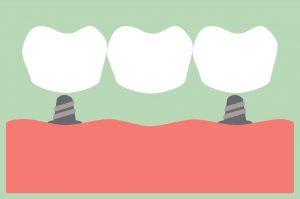dental cartoon vector, dental bridge