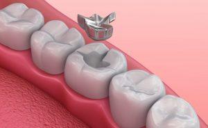 An illustration of dental fillings.