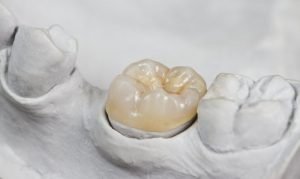 three tooth colored porcelain crowns